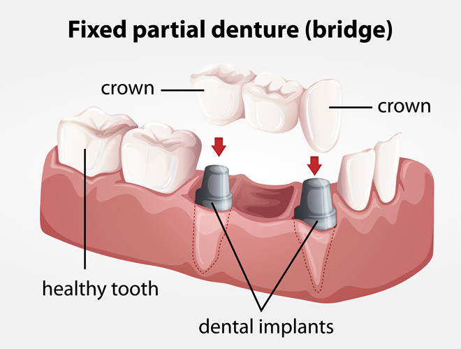 Dental Bridges from Lifetime Smiles of Escondido