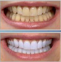 teeth whitening procedure KO