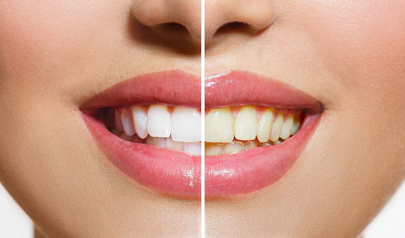 Which teeth whitening procedure is right for you?