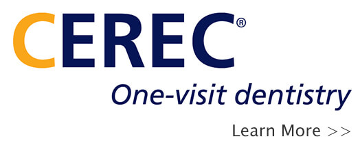 CEREC One Visit Crowns in Escondido, CA
