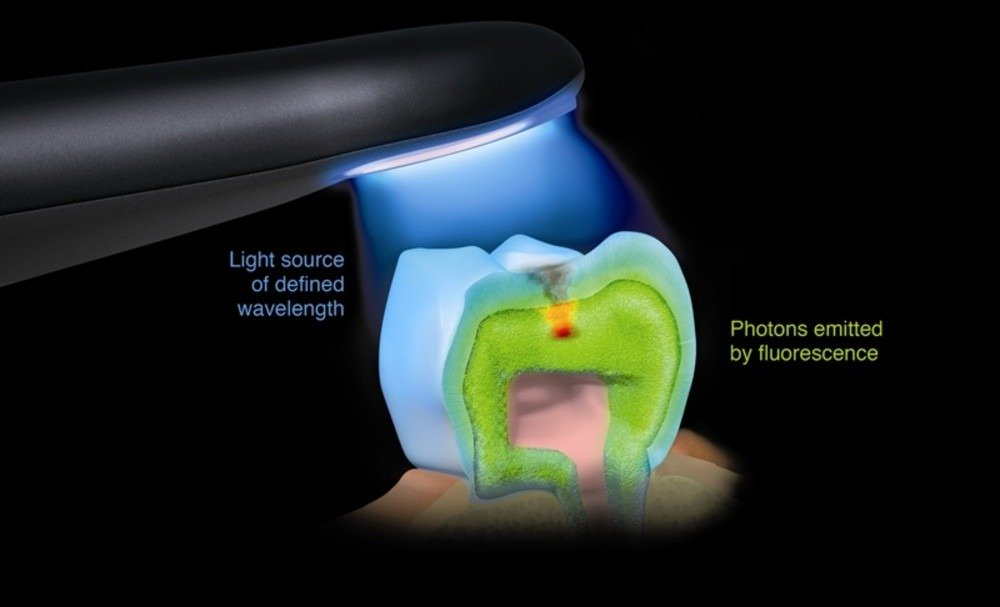 Early Detection of Dental Cavities