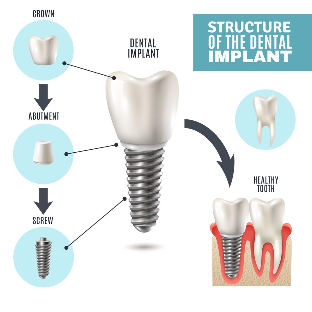 dental implant explanation from Lifetime Smiles of Escondido